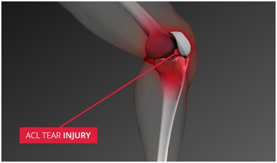 ACL tear injury