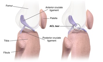 acl injury treatment in jaipur