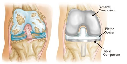 Knee Replacement Treatment in Jaipur