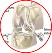 Arthroscopy treatment in Jaipur