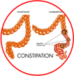Constipation treatment in Jaipur