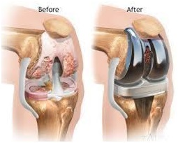 Joint replacement sugery centre in jaipur