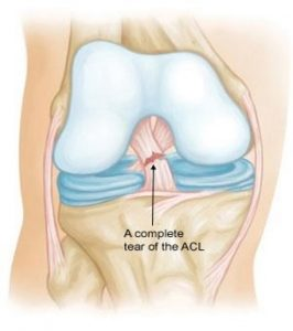 ACL Surgery in Jaipur